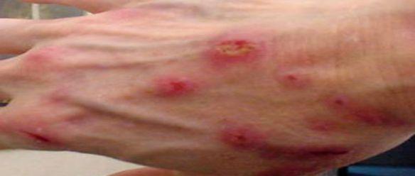 A Verdade Sobre a Doença de Morgellons