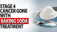 Stage-4-Cancer-Gone-With-Baking-Soda-Treatment